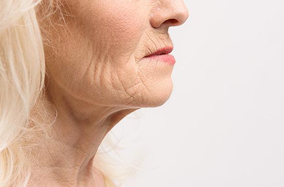 Utrata jędrności skóry